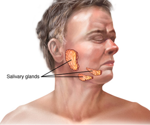 how to fix damaged salivary glands