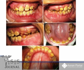 Dental Rehabilitation of Amelogenesis Imperfecta in the Mixed Dentition