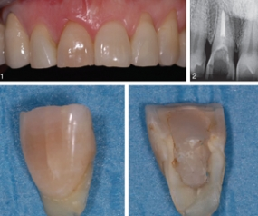 The Use of Leukocyte- and Platelet-Rich Fibrin During Immediate Postextractive Implantation and Loading for the Esthetic Replacement of a Fractured Maxillary Central Incisor