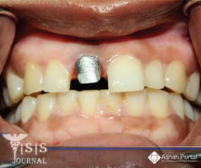Salvaging an Implant with Abutment Screw Fracture by a Custom Titanium Post and Core Supported Prosthesis - A Novel Technique
