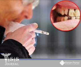 Detrimental Effects of Smoking on Periodontium in Health and Disease