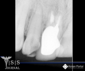 Maxillary Central Incisor with two Root Canals and two Separated Roots: A Case Report