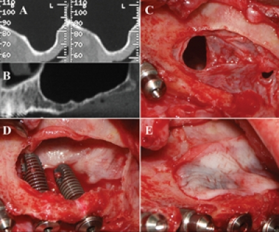 Simultaneous Sinus-Lift and Implantation Using Microthreaded Implants and Leukocyte- and Platelet-Rich Fibrin as Sole Grafting Material: A Six-Year Experience