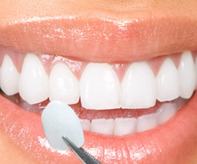 Practical steps for Porcelain Dental Veneers