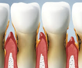 Estimation and comparison of osteopontin levels in plasma in subjects with healthy periodontium and generalized chronic periodontitis and its assessment after scaling and root planing