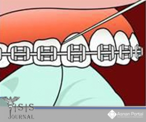 Periodontal Maintenance Program in Orthodontic patients