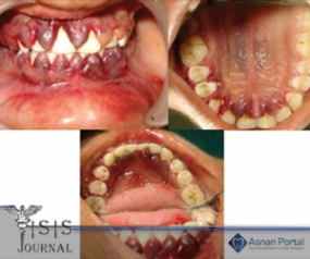 A Case of Diffuse Gingival Enlargement in Acute  Myeloblastic Leukemia (AML M1)